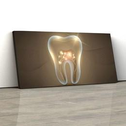 Quadro Decorativo Dentista Consultório Odontológico 150x70cm